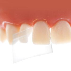 ProxyPal 3D Anterior Matrix   Dentistry Products   Fibrebond.